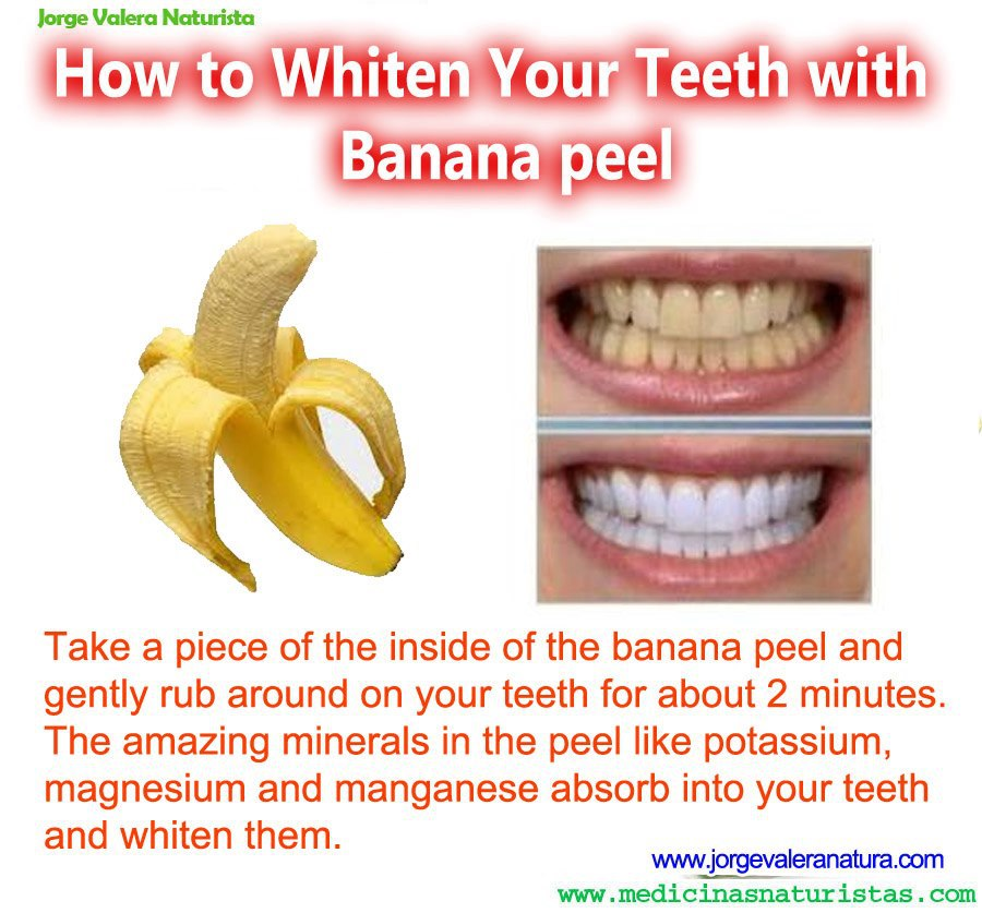 banana peel as an alternative for toothpaste Will a banana peel whiten your teeth plus 7 at-home teeth whitening products now for a little whitening diy for a natural alternative to brightening your teeth.